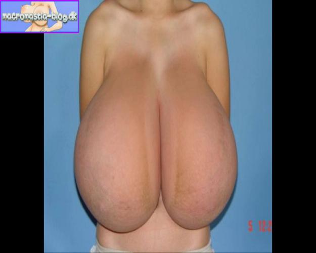 biggest macromastia - Cumception
