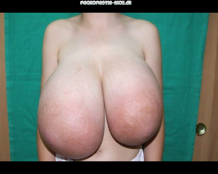 Abnormal boobs 11